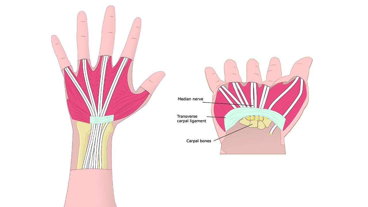quando le articolazioni deformate nell'artrite reumatoide